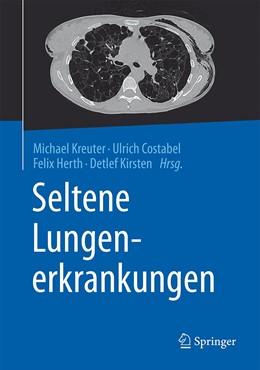 Abbildung von Kreuter / Costabel | Seltene Lungenerkrankungen | 1. Auflage | 2016 | beck-shop.de