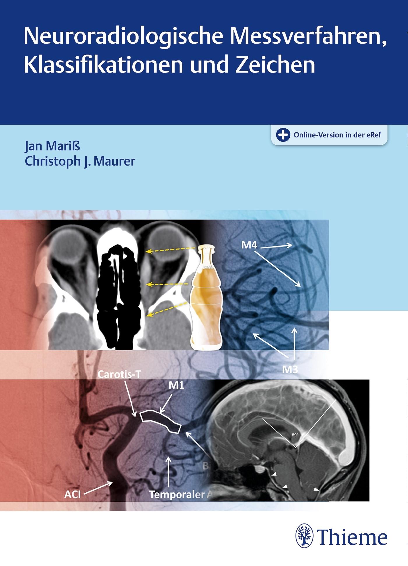 Neuroradiologische Messverfahren, Klassifikationen und Zeichen | Mariß / Maurer, 2017 (Cover)