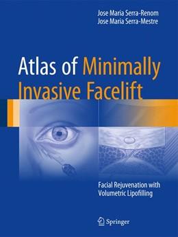 Abbildung von Serra-Renom / Serra-Mestre   Atlas of Minimally Invasive Facelift   1. Auflage   2016   beck-shop.de