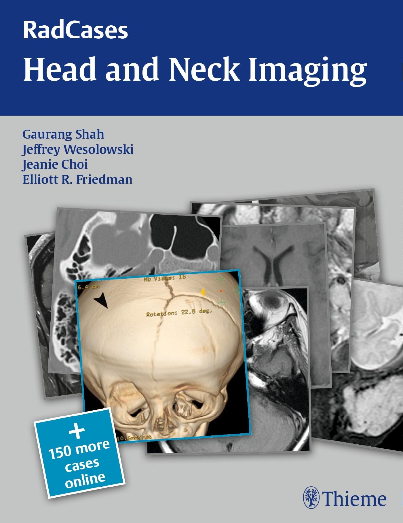 Abbildung von Shah / Wesolowski / Choi / Friedman | RadCases Head and Neck Imaging | 2016