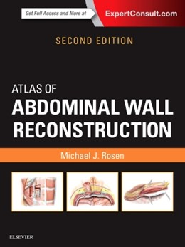Abbildung von Rosen | Atlas of Abdominal Wall Reconstruction | 2. Auflage | 2016 | beck-shop.de