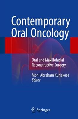 Abbildung von Kuriakose | Contemporary Oral Oncology | 1. Auflage | 2017 | beck-shop.de