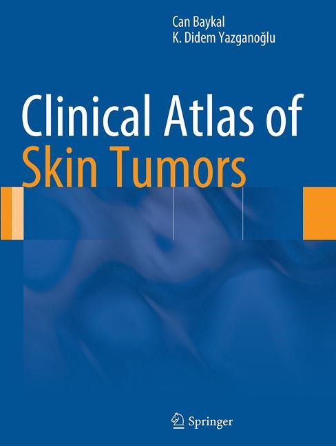 Abbildung von Baykal / Yazganoglu | Clinical Atlas of Skin Tumors | Softcover reprint of the original 1st ed. 2014 | 2016