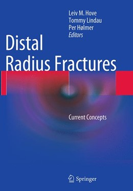 Abbildung von Hove / Lindau / Hølmer   Distal Radius Fractures   Softcover reprint of the original 1st ed. 2014   2016   Current Concepts