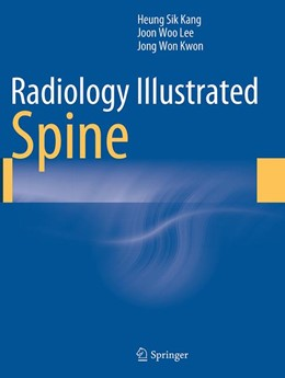 Abbildung von Kang / Lee / Kwon   Radiology Illustrated: Spine   Softcover reprint of the original 1st ed. 2014   2016