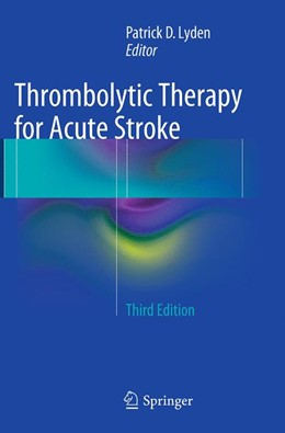 Abbildung von Lyden | Thrombolytic Therapy for Acute Stroke | Softcover reprint of the original 3rd ed. 2015 | 2016