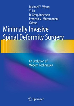Abbildung von Wang / Lu / Anderson / Mummaneni | Minimally Invasive Spinal Deformity Surgery | Softcover reprint of the original 1st ed. 2014 | 2016 | An Evolution of Modern Techniq...