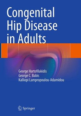 Abbildung von Hartofilakidis / Babis / Lampropoulou-Adamidou | Congenital Hip Disease in Adults | Softcover reprint of the original 1st ed. 2014 | 2016
