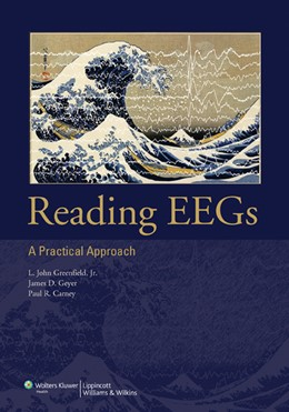 Abbildung von Greenfield / Geyer / Carney | Reading EEGs: A Practical Approach | 2009