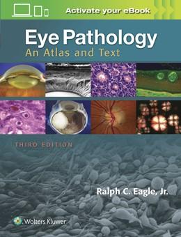 Abbildung von Eagle   Eye Pathology   3. Auflage   2016   beck-shop.de