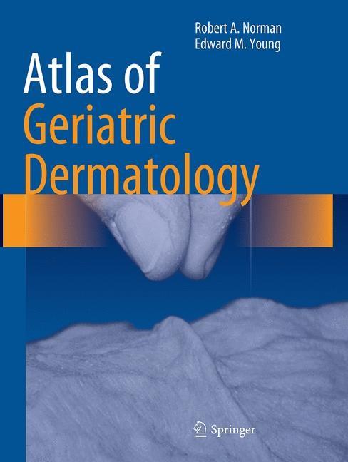 Abbildung von Norman / Young, Jr   Atlas of Geriatric Dermatology   Softcover reprint of the original 1st ed. 2014   2016