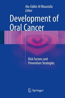 Abbildung von Al Moustafa | Development of Oral Cancer | 1st ed. 2017 | 2017 | Risk Factors and Prevention St...