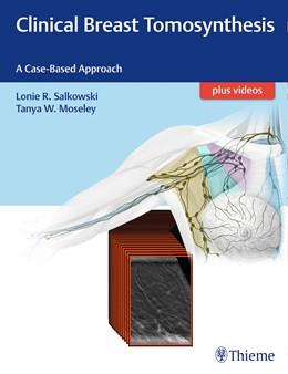 Abbildung von Salkowski / Moseley | Clinical Breast Tomosynthesis | 2017 | A Case-Based Approach
