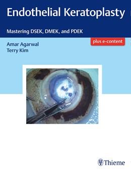 Abbildung von Agarwal / Kim | Endothelial Keratoplasty | 2017 | Mastering DSEK, DMEK, and PDEK