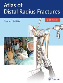 Abbildung von Del Pinal | Atlas of Distal Radius Fractures | 1. Auflage | 2018 | beck-shop.de