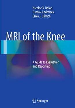 Abbildung von Bolog / Andreisek / Ulbrich | MRI of the Knee | Softcover reprint of the original 1st ed. 2015 | 2016 | A Guide to Evaluation and Repo...