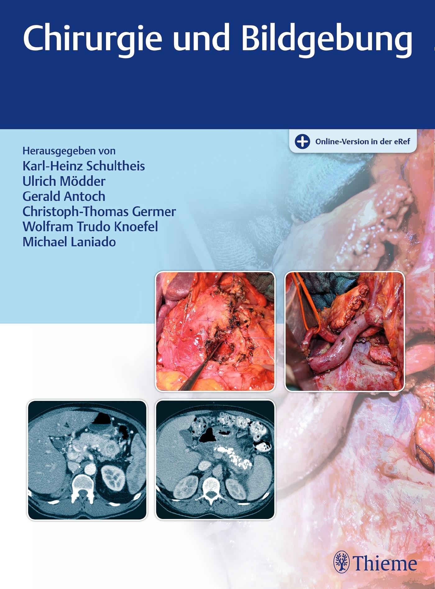 Chirurgie und Bildgebung | Schultheis / Mödder / Antoch / Germer / Knoefel (Hrsg.), 2017 (Cover)