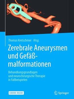 Abbildung von Kretschmer | Zerebrale Aneurysmen und Gefäßmalformationen | 2017 | Behandlungsgrundlagen und neur...