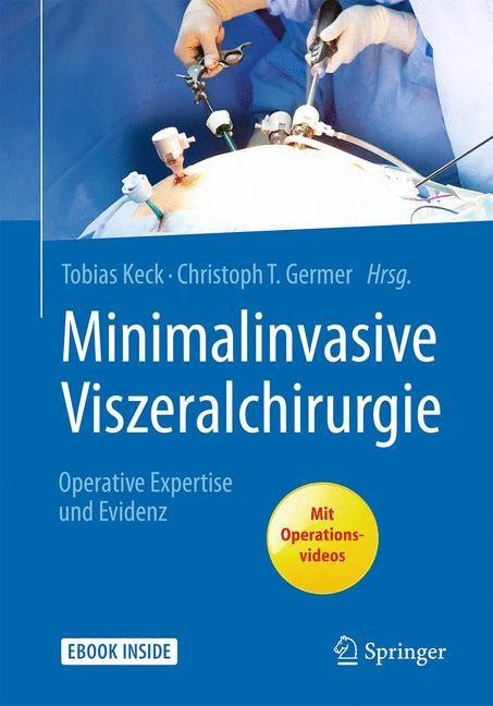 Minimalinvasive Viszeralchirurgie | Keck / Germer (Hrsg.), 2017 (Cover)