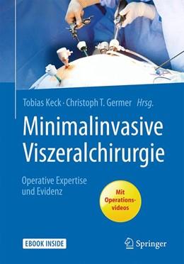 Abbildung von Keck / Germer (Hrsg.)   Minimalinvasive Viszeralchirurgie   2017   Operative Expertise und Eviden...