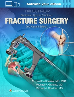 Abbildung von Henley   Harborview Illustrated Tips and Tricks in Fracture Surgery   2. Auflage   2018   beck-shop.de