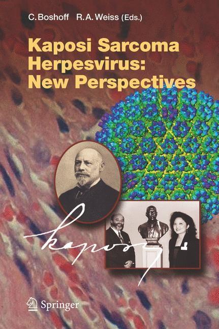 Kaposi Sarcoma Herpesvirus: New Perspectives | Boshoff / Weiss, 2006 | Buch (Cover)