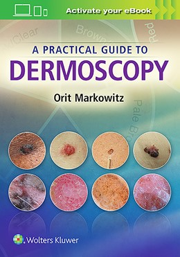 Abbildung von Markowitz | A Practical Guide to Dermoscopy | 2017
