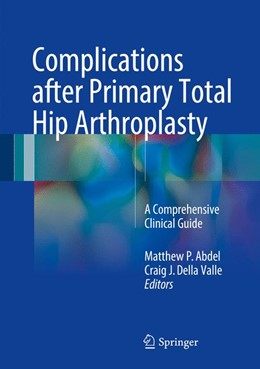 Abbildung von Abdel / Della Valle | Complications after Primary Total Hip Arthroplasty | 2017 | A Comprehensive Clinical Guide
