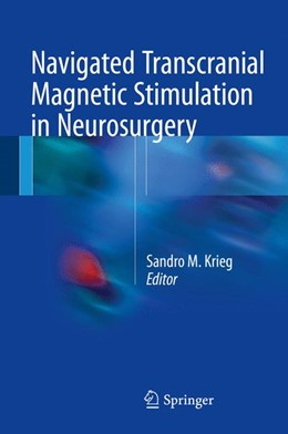 Abbildung von Krieg | Navigated Transcranial Magnetic Stimulation in Neurosurgery | 1. Auflage | 2017 | beck-shop.de
