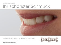 Abbildung von Drachenberg | Ihr schönster Schmuck | 1. Auflage | 2017 | Moderne prothetische Versorgun...