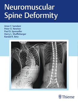 Abbildung von Samdani / Newton / Shufflebarger / Betz / Sponseller   Neuromuscular Spine Deformity   2018   A Harms Study Group Treatment ...