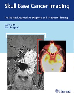 Abbildung von Yu / Forghani | Skull Base Cancer Imaging | 2018 | The Practical Approach to Diag...