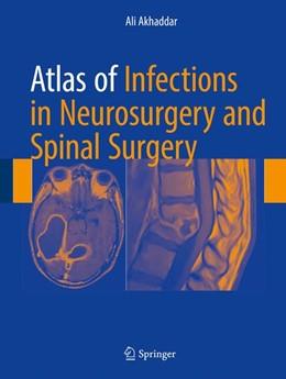 Abbildung von Akhaddar | Atlas of Infections in Neurosurgery and Spinal Surgery | 1. Auflage | 2017 | beck-shop.de