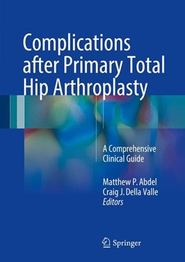 Abbildung von Abdel / Della Valle | Complications after Primary Total Hip Arthroplasty | 1st ed. 2017 | 2017 | A Comprehensive Clinical Guide