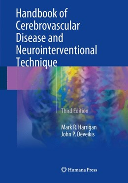 Abbildung von Harrigan / Deveikis | Handbook of Cerebrovascular Disease and Neurointerventional Technique | 3. Auflage | 2018 | beck-shop.de