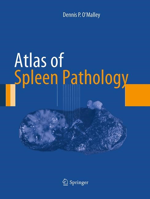 Atlas of Spleen Pathology | O'Malley | Softcover reprint of the original 1st ed. 2013, 2016 | Buch (Cover)