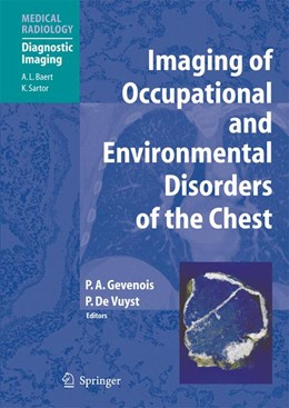 Abbildung von Gevenois / de Vuyst   Imaging of Occupational and Environmental Disorders of the Chest   Softcover reprint of the original 1st ed. 2006   2016