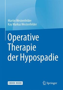 Abbildung von Westenfelder | Operative Therapie der Hypospadie | 2017