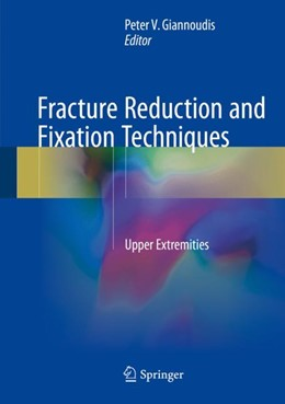 Abbildung von Giannoudis   Fracture Reduction and Fixation Techniques   2018