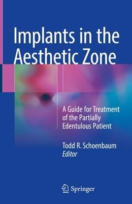 Abbildung von Schoenbaum | Implants in the Aesthetic Zone | 1. Auflage | 2018 | beck-shop.de