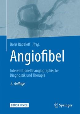 Abbildung von Radeleff (Hrsg.) | Angiofibel | 2. Auflage | 2021 | beck-shop.de