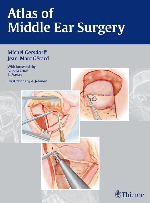 Abbildung von Gersdorff / Gérard | Atlas of Middle Ear Surgery | 2010