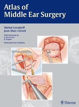 Abbildung von Gersdorff / Gérard   Atlas of Middle Ear Surgery   2010