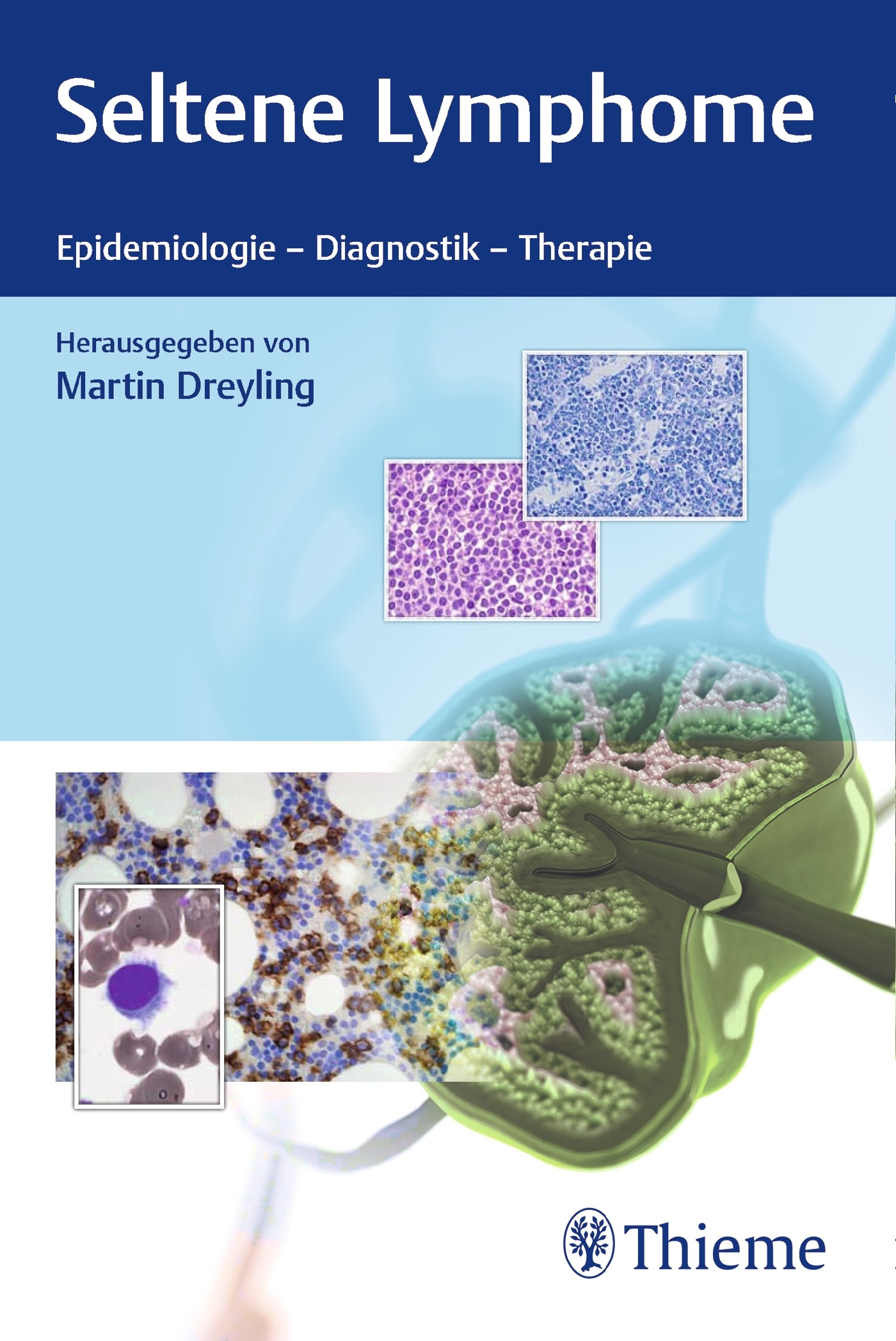 Seltene Lymphome   Dreyling, 2018   Buch (Cover)