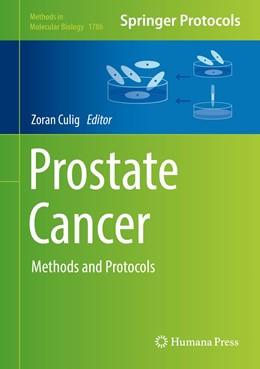 Abbildung von Culig | Prostate Cancer | 1. Auflage | 2018 | beck-shop.de