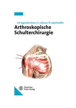 Abbildung von Agneskirchner / Lafosse / Lobenhoffer   Arthroskopische Schulterchirurgie   2013