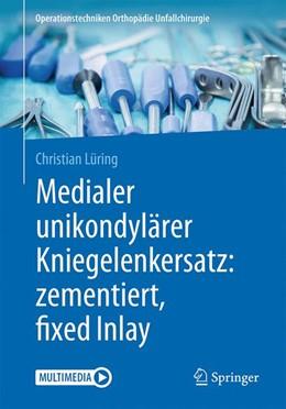 Abbildung von Lüring | Medialer unikondylärer Kniegelenkersatz: zementiert, fixed Inlay | 1. Auflage | 2018 | beck-shop.de