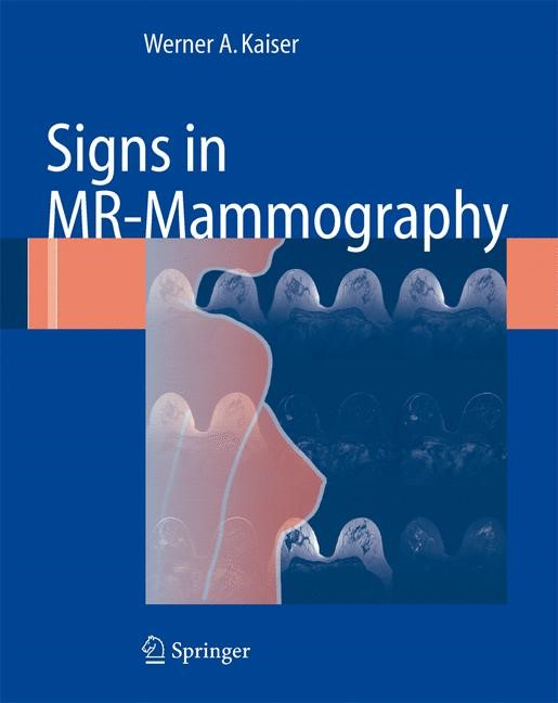 Signs in MR-Mammography | Kaiser | 1st ed. 2008. Corr. 2nd printing, 2008 | Buch (Cover)
