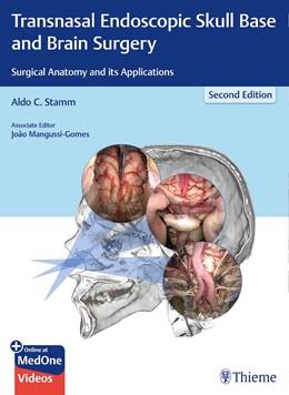 Abbildung von Stamm | Transnasal Endoscopic Skull Base and Brain Surgery | 2. Auflage | 2019 | beck-shop.de