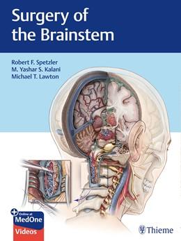 Abbildung von Spetzler / Kalani   Surgery of the Brainstem   1. Auflage   2020   beck-shop.de